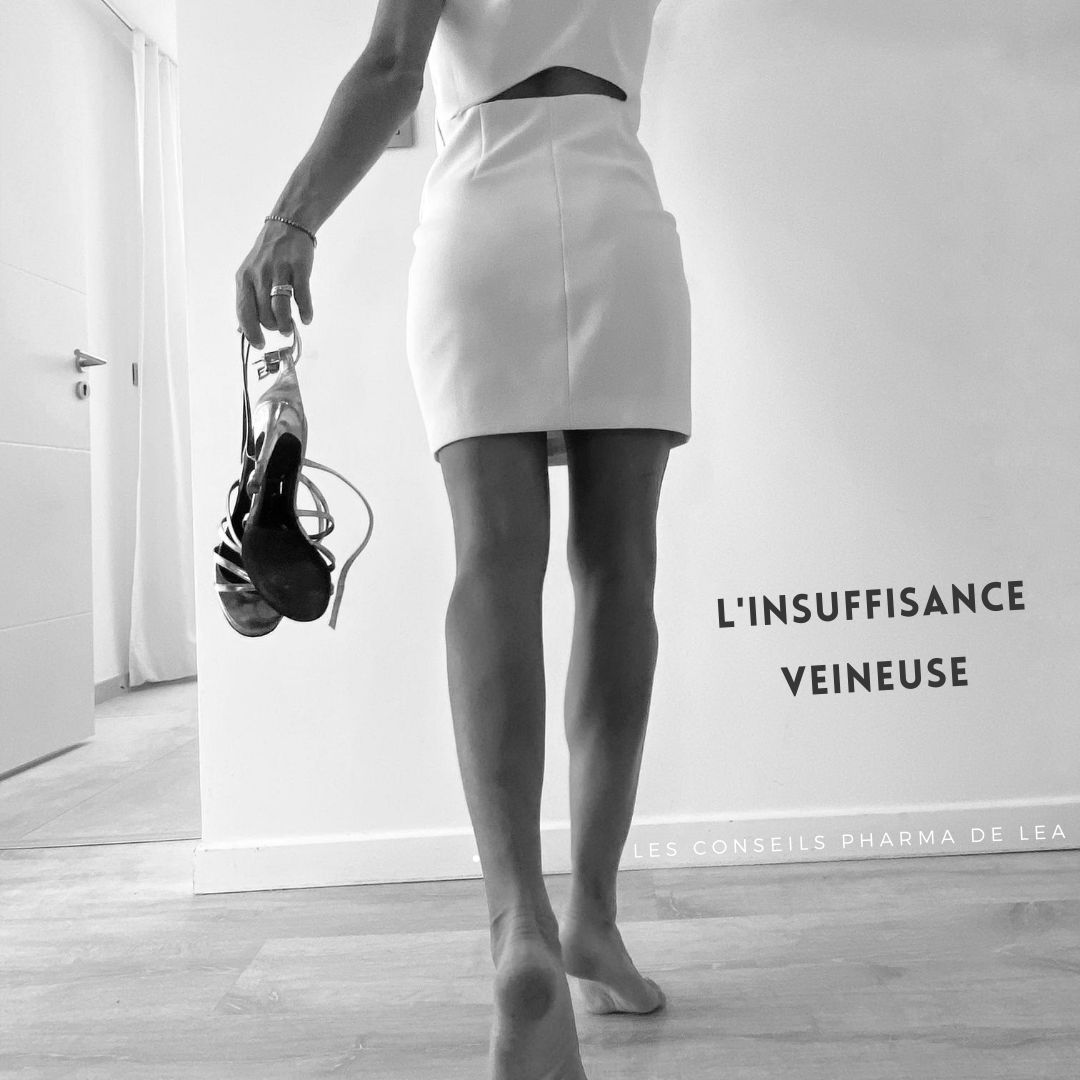 insuffisance-veineuse-conseils-jambes-lourdes